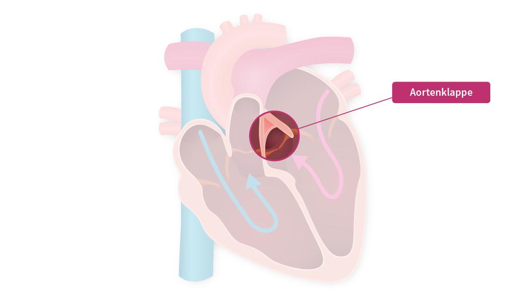 Eine Grafik die das innere des menschlichen Herzens mit den Herzklappen darstellt. Die Aortenklappe steht im Fokus.