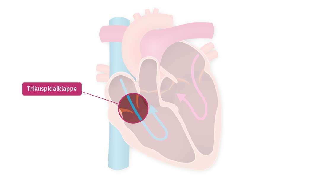 Eine Grafik die das innere des menschlichen Herzens mit den Herzklappen darstellt. Die Trikuspidalklappe steht im Fokus.